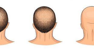 صورة علاج تساقط الشعر للرجال , وصفه ناجحه لتساقط الشعر عند الرجل