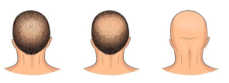 صور علاج تساقط الشعر للرجال , وصفه ناجحه لتساقط الشعر عند الرجل
