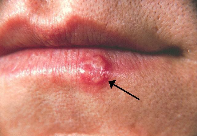 صورة مرض الهربس , ما هو الهربس البسيط