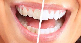 صوره كيفية تبييض الاسنان , طريقة سريعة لتبيض الاسنان