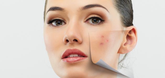 صورة علاج البشرة الدهنية , طرق للعلاج البشرة الدهنية