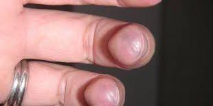 بالصور مرض فقر الدم , ماهو مرض فقر الدم 2783 2 310x155