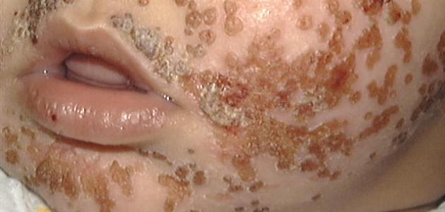 صورة مرض السحايا , الالتهاب السحائى واعراضة