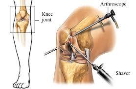 صورة عملية الرباط الصليبي , ماهو الرباط الصليبي وطرق علاجة