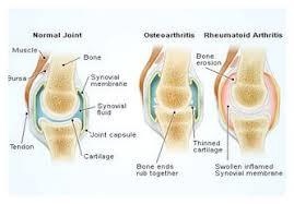 صورة علاج الروماتيزم , اهم علاج للروماتيزم 5557 1