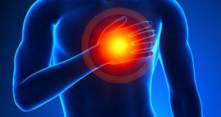 صوره اعراض الذبحة الصدرية , واسبابها وعلاجها