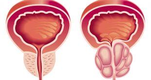 بالصور اسباب تضخم البروستاتا , واساليب علاجها لدى الرجال 1874 3 310x165
