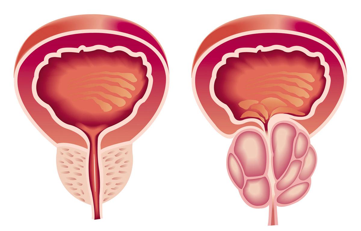 صورة اسباب تضخم البروستاتا , واساليب علاجها لدى الرجال
