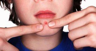بالصور علاج الدمل , طرق منزلية بسيطه لعلاج الدمل 2117 3 310x165