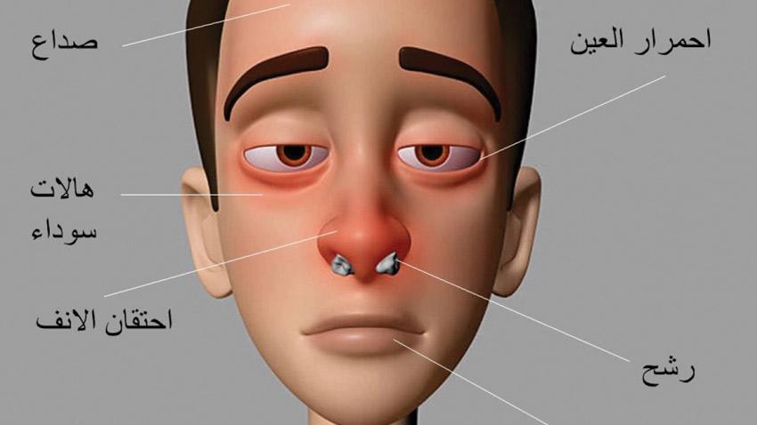صورة اعراض حساسية الانف , تعرف على اعراض حساسية الانف