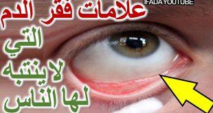 بالصور اعراض فقر الدم , تعرف على اعراض فقر الدم 3361 3 310x165