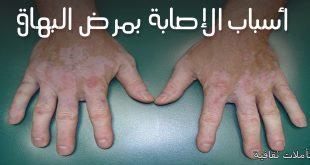 صوره مرض البهاق , ماهو البهاق واسبابه وعلاجه