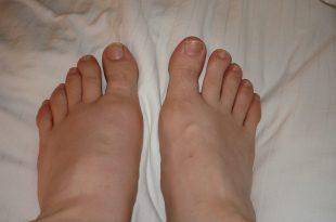 صورة ما هو مرض النقرس , تعريف النقرس و اضراره