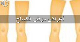 صور مرض الكساح , تعرف علي مرض الكساح