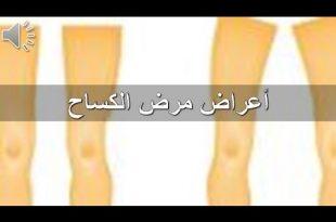 بالصور مرض الكساح , تعرف علي مرض الكساح 0 1 310x205
