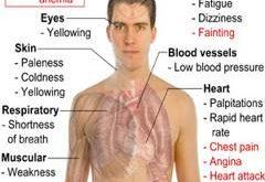 صور اعراض نقص فيتامين ب ١٢ , انخفاض فيتامين ب 12 بالجسم