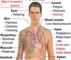 صوره اعراض نقص فيتامين ب ١٢ , اعراض انخفاض فيتامين ب 12 بالجسم