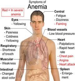 بالصور اعراض نقص فيتامين ب ١٢ , اعراض انخفاض فيتامين ب 12 بالجسم 1230