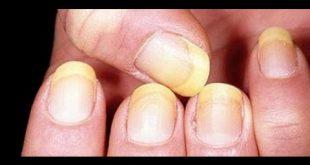 صور اعراض مرض الكبد , مشكلات مرضي الكبد
