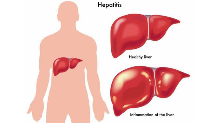 صورة اعراض مرض الكبد , مشكلات مرضي الكبد