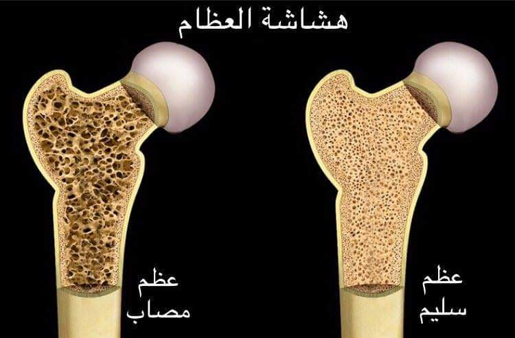 صور صور هشاشه العظام , اصعب المشاكل التى تواجه كبار السن