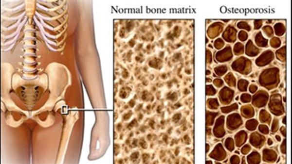 صورة صور هشاشه العظام , اصعب المشاكل التى تواجه كبار السن