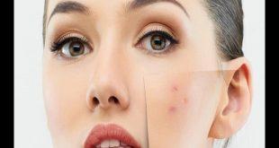 صورة البقع الداكنة في الوجه , ما حل هذه البقع