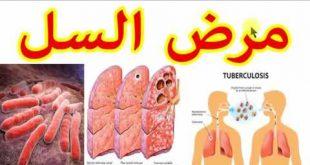 صور بحث عن مرض السل , التعريف بمرض السل و اعراضه