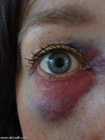 صور علاج كدمات الوجه , اسرع حل للكدمات