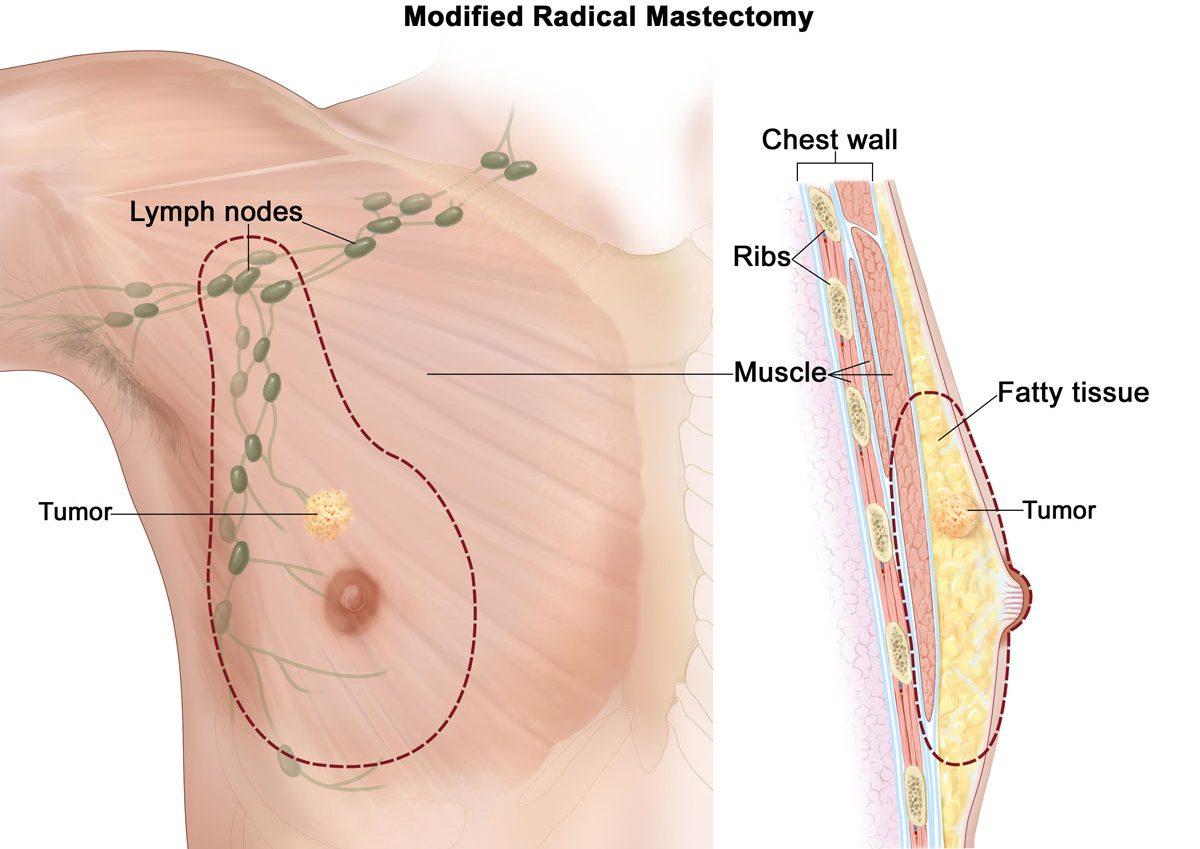 بالصور اعراض امراض الثدي , سرطان الثدى 14442 1
