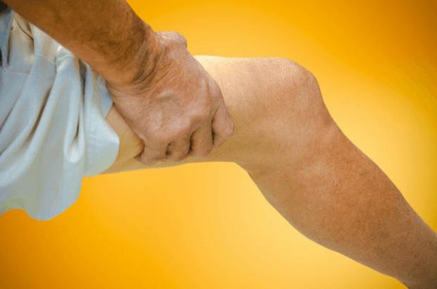 صور علاج الم الفخذ , اصعب انواع الالام