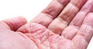 صور ما علاج الاكزيما , اسهل علاج للاكزيما