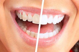 صورة طرق تبييض الاسنان , اسرار للحصول علي اسنان لامعه مثل الثلج
