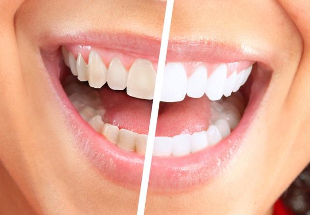 صورة طرق تبييض الاسنان , احصل علي اسنان لامعه مثل الثلج