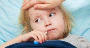 صورة مرض الحصبة , احمي طفلك من الاصابة بعدوي الحصبة
