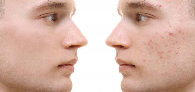 صورة ازالة حبوب الوجه , طرق مذهلة لبشرة روعة
