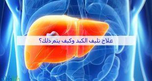 صورة علاج تليف الكبد, اخطر الامراض التي تصيب الكبد