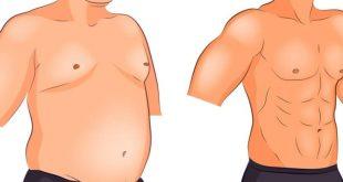 صورة عملية نحت الجسم, التخلص من مشاكل الوزن الزائد