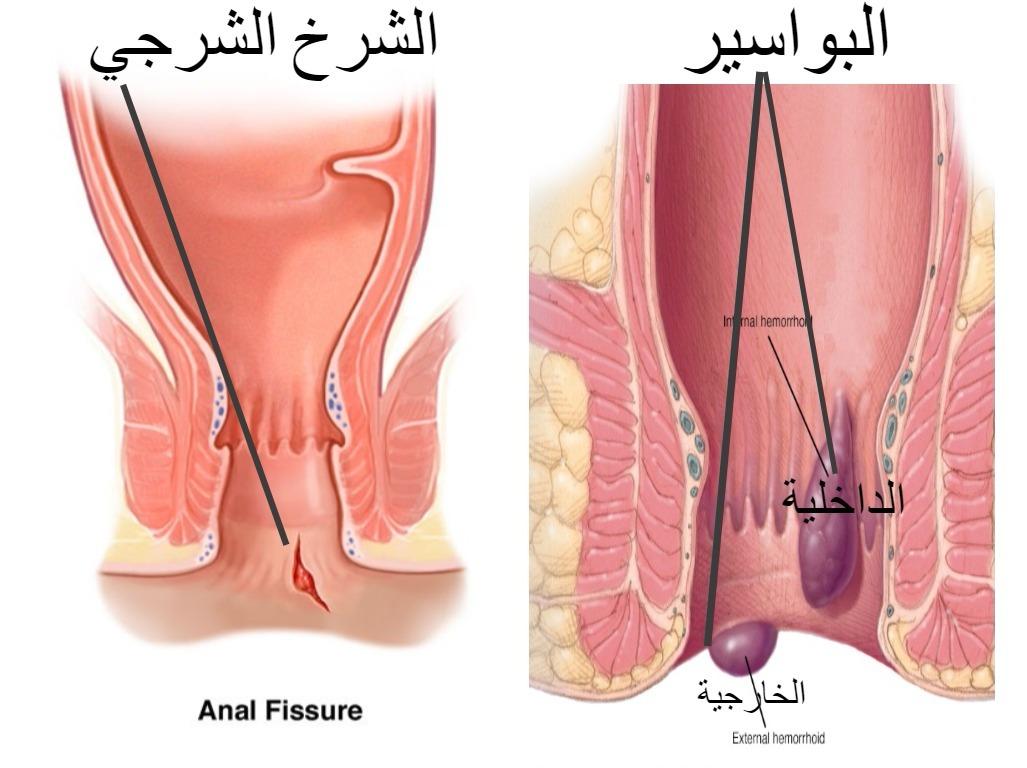 صورة اصعب الم واغرب اعراض ممكن يحسها الانسان, اعراض البواسير