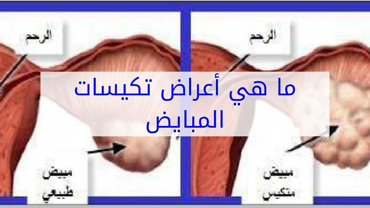 صورة ماهي اعراض تكيس المبايض, اكتر مرض بيمنع الحمل
