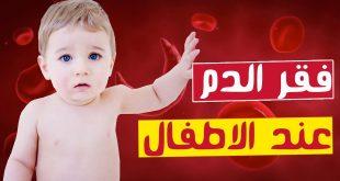 صورة معلومات كبيرة عن فقر الدم , اعراض فقر الدم للاطفال