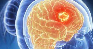 احرص من ذلك المرض , اعراض سرطان الدماغ